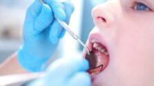 What Prevents Tooth Decay
